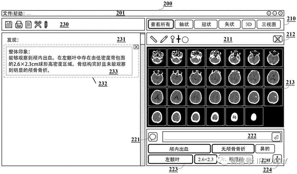 AI赋能医疗影像抗疫